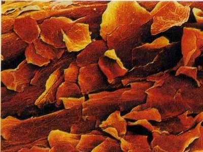 чешуйки кожи под микроскопом